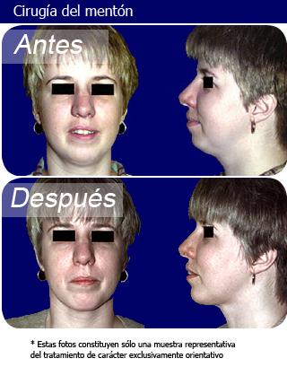 cirugía del mentón